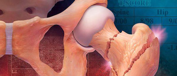 Йога против остеопороза
